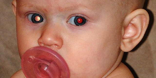A baby has one red pupil and one white pupul - the classic early sign of eye cancer in children.