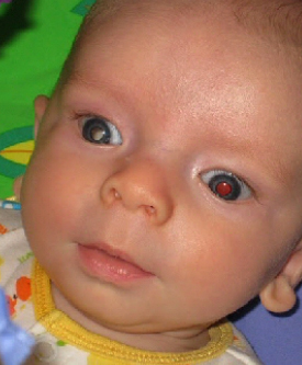 Baby with one white pupil and one red pupil