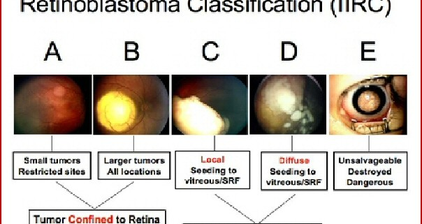 This image diagram describes each group of the International Intraocular Retinoblastoma Classification