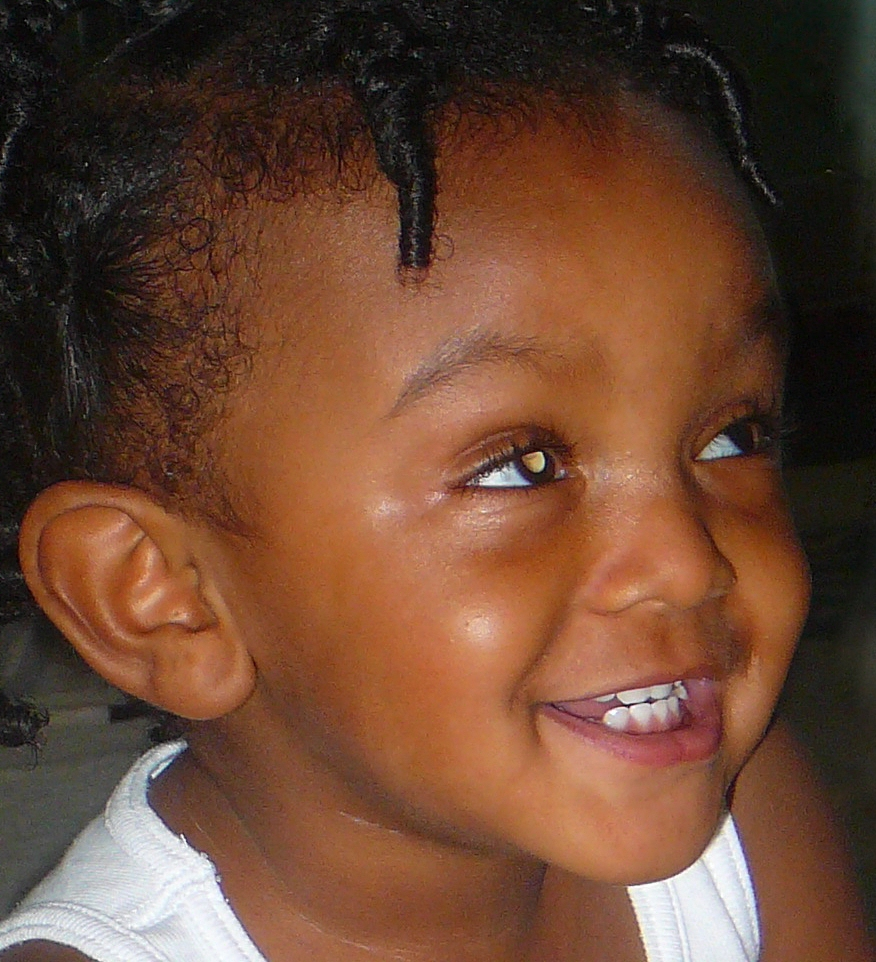 A family snap of a smiling African child shows leukocoria.