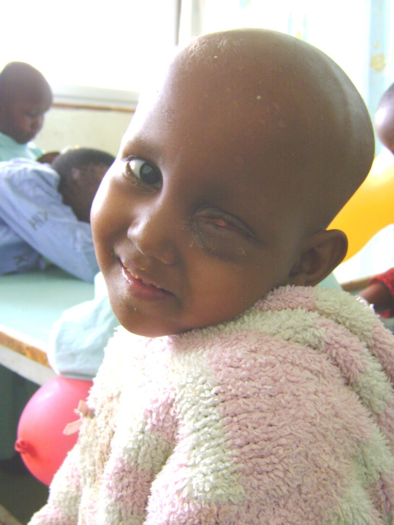 A child smiles despite having no eye following surgery at a time when artificial eyes not readily available in Kenya.