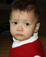 A young boy with bilateral retinoblastoma.