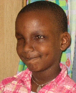 A young African child with large white glow in her one eye smiles, despite missing her other eye.