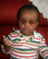 A young boy following treatment.