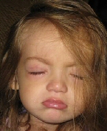 A child has swollen sore eyes after periocular chemotherapy injections.