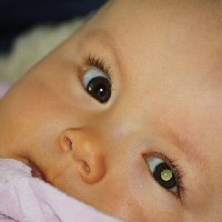 A baby has a white glow in one eye and no red reflex in the other eye.