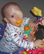 A baby plays during isolation for brachytherapy.