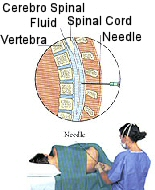 A diagram showing how lumbar puncture is performed.