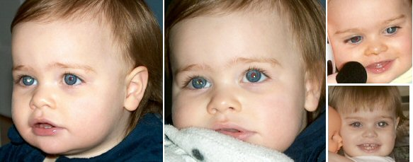 Four photos of the same child, showing leukocoria from different angles, at different ages.