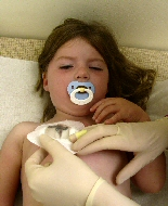 A young girl takes comfort from a pacifier during a painful procedure.