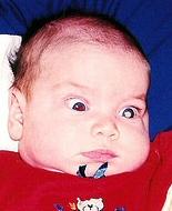 A baby's eye glows white due to retinoblastoma