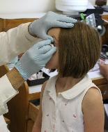 An ocularist inserts a child's new eye.