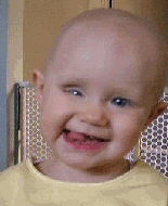 A young girl, bald from chemotherapy, smiles broadly.