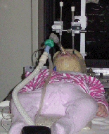 A young girl is anaesthetized and intubated during radiotherapy.