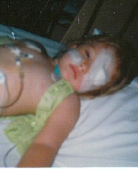 A young girl during plaque therapy.