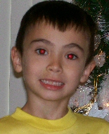This child has healthy red reflex in both eyes