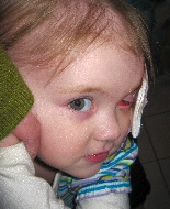 Regrowth of a young girl's cancer is visible in her eye socket.
