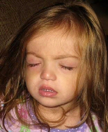 A young girl's eye is swollen after treatment.