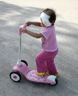 A young girl rides her scooter following eye removal surgery.