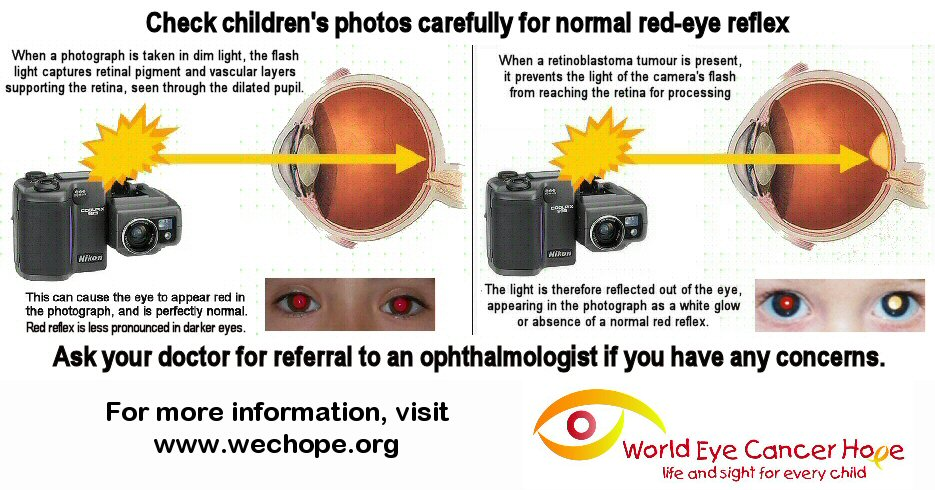 A diagram shows the camera's flash light entering the eye, reflrecting back red vascular layers of the retina in the healthy eye, or white from the surface of a tumour when cancer is present.