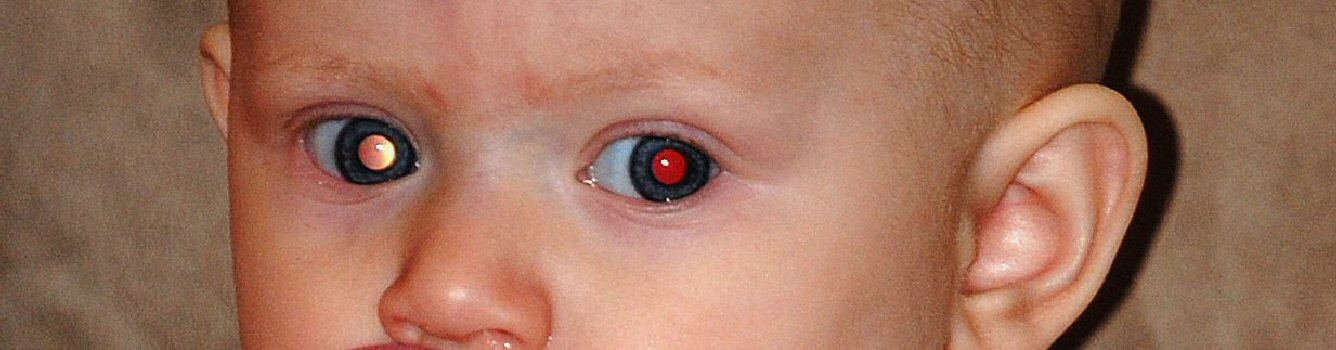This baby has one red eye and one white eye.