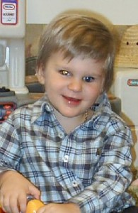 Brady has a white glow in his eye due to calcification of the cancer after radiotherapy.