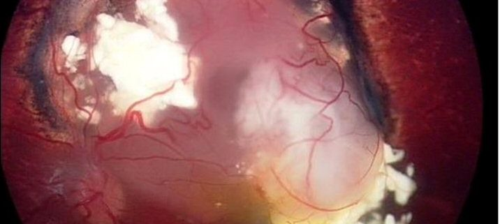 A fuzzy cloud shows recurrence of a previously treated tumour.