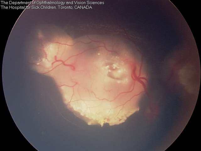The same eye after systemic chemotherapy - the mass has shrunk in all dimensions.