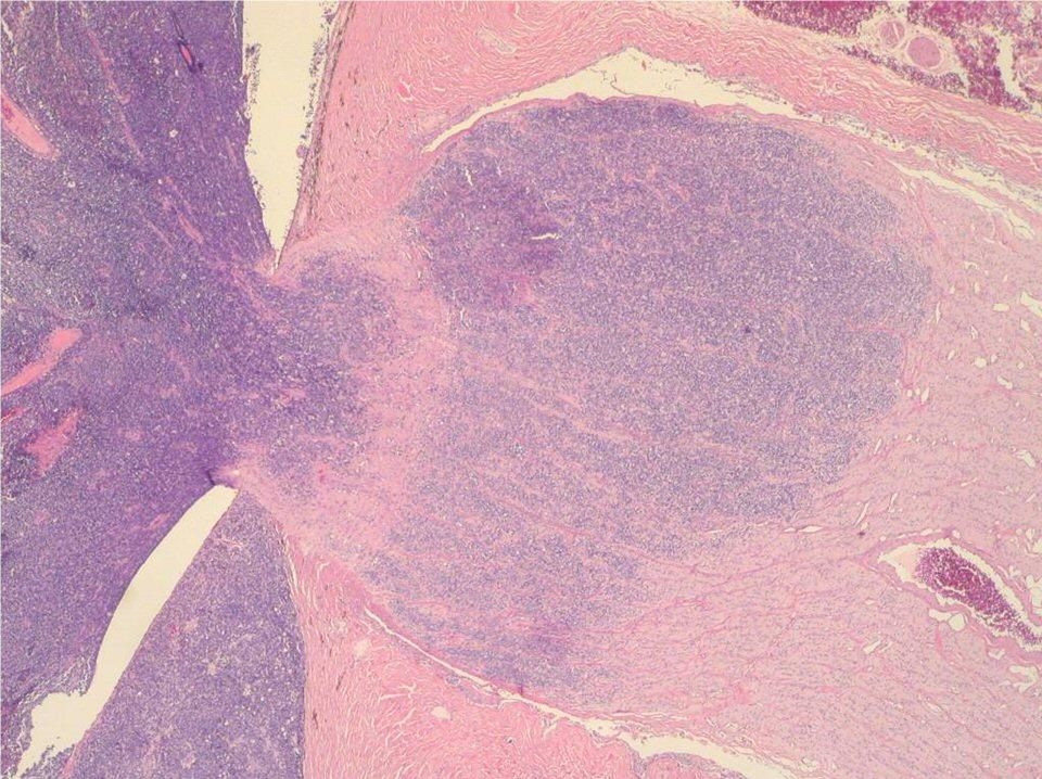 Pathology slide showing advanced retinoblastoma