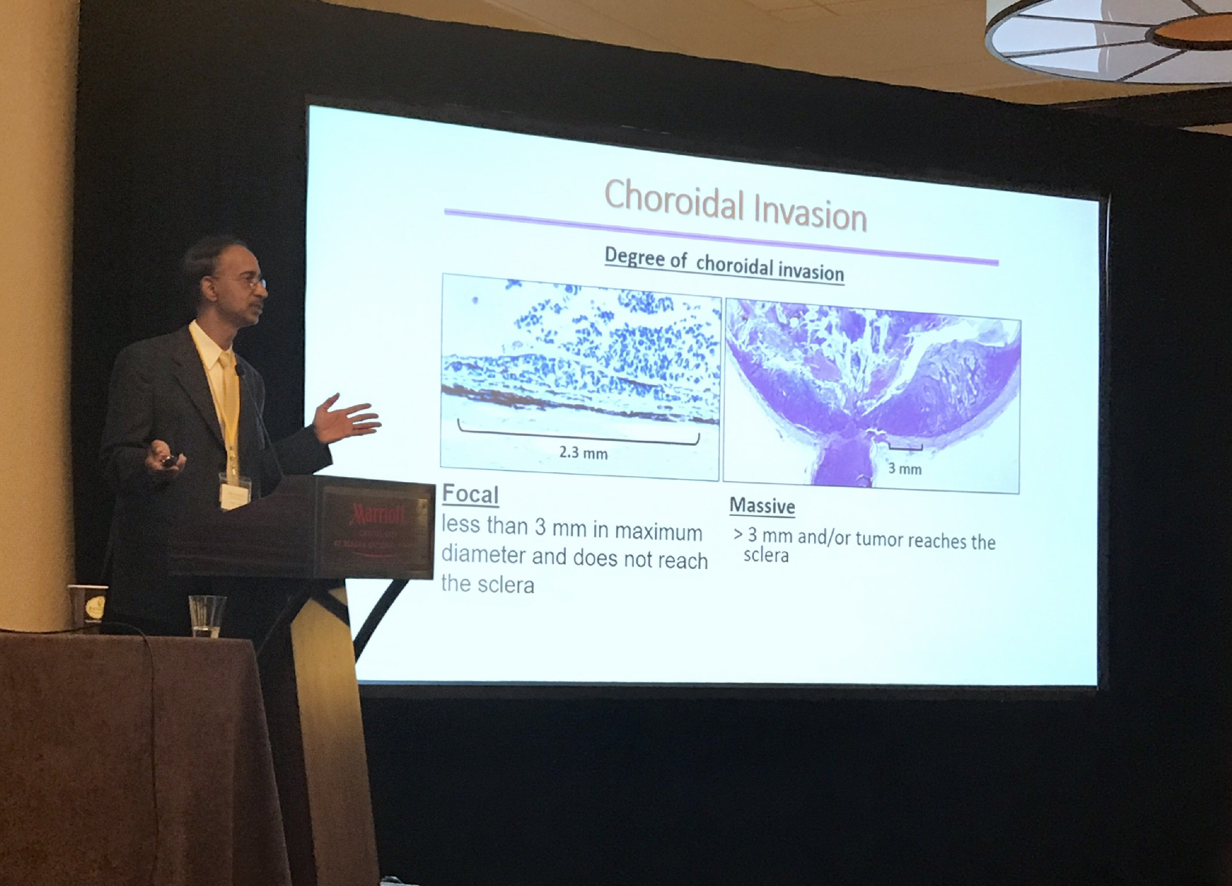 "Murali Chintagumpala explores the debated areas of retinoblastoma pathology. The slide behind him is titled ""Choroidal Invasion"" with a subheading ""Degree of Choroidal Invasion"". Descriptions below two microscopic pathology slide images read: (Left) FOCAL: Less than 3mm in maximum diameter and does not reach the sclera. (Right) MASSIVE: >3mm and / or tumor reaches the sclera."