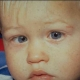 A baby has a squint - the right eye is rutned in towards the nose.