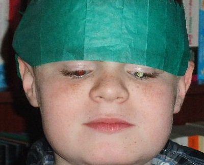 An older child wears a Christmas cracker hat. The left eye glows white while the other has normal red reflex.