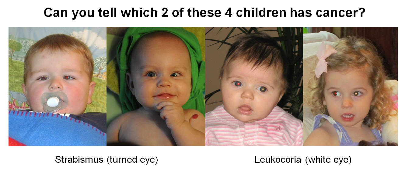"Title: Can you tell which 2 of these 4 children has cancer? Below is a row of 4 photos. 2 show children with a left eye turned inwards, labelled ""strabismus (turned eye)"". 2 have a white pupil in their left eye and a red pupil in their right eye, labelled ""leukocoria (white eye)"""