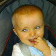 A baby boy looks at the camera. his right eye shows a white reflex while his left eye is turned in towards his nose.