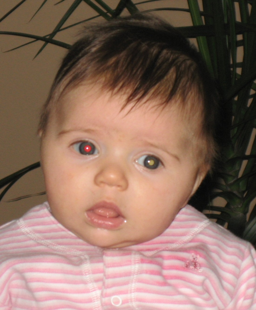 a baby girl looks towards the camera. Her right eye shows red reflex while her left eye shows a dull creamy-white reflex.