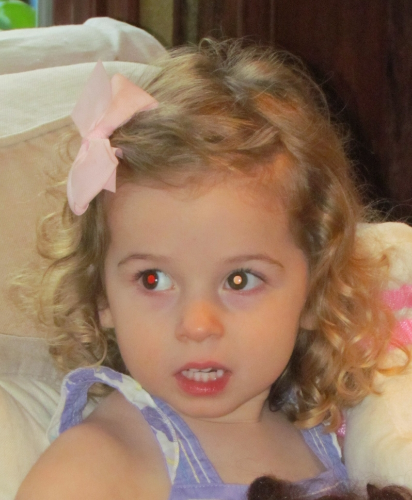 a young girl looks towards the camera. Her right eye shows red reflex while her left eye shows a pale pink-white reflex.