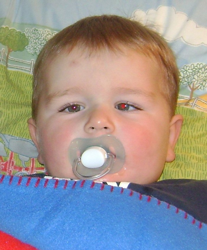 A baby boy is seen with the left eye turning in towards his nose.
