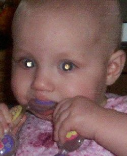 This child's cancer is clearly visible as a white glow in both eyes.