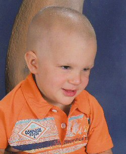 A young boy, bald from chemotherapy, smiles.