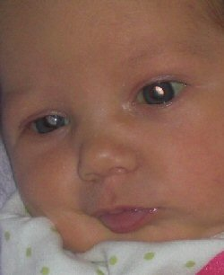 a baby has white reflex in both eyes.
