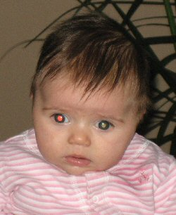 This child's white eye glow is an early sign of retinoblastoma.
