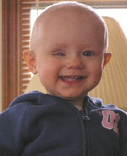 A young girl smiles through the effects of chemotherapy.