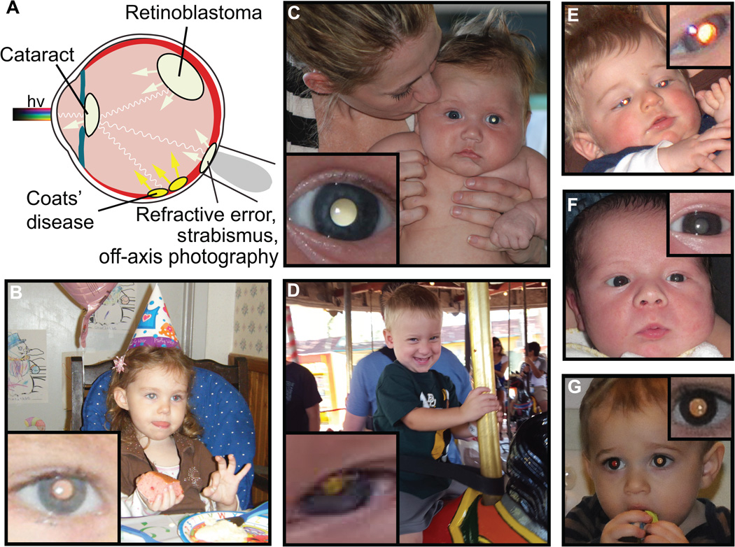 Image shows a diagram inside the eye on the top left, and six photos of children below and to the right. The eye diagram shows how different diseases may form and reflect light, distinguishing the yellow reflection of Coat's disease from other conditions that produce a whiter reflex. The photos depict everyday family occasions, and include an enlarged insert of the eye with white pupil.