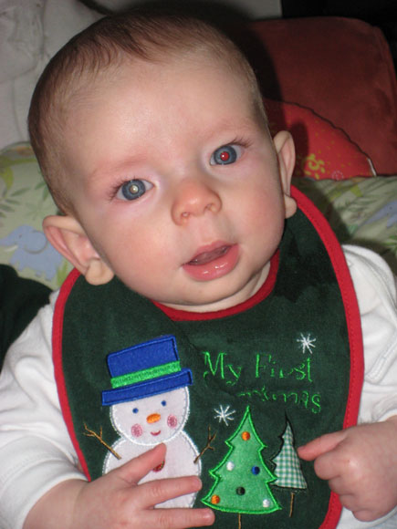 In Noah's first Christmas photo, a white glow is clearly visible in his right eye.