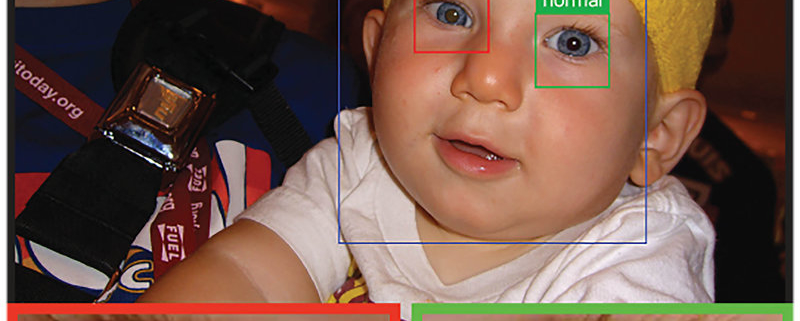 Close up of a child with leukocoria detected by CRADLE, with results boxes around both eyes and magnified images of both eyes below the main photo.
