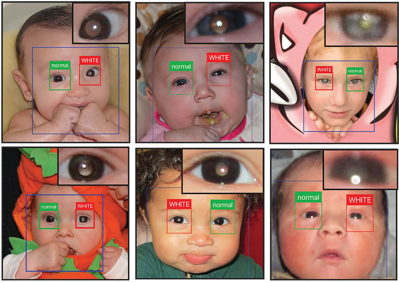 """Image showing 6 panels of children's photos. In each photo, little boxes surround the child's individual eyes, either coloured red with the word """"white"""" along the top, or coloured green, with the word """"normal"""" along the top. The red boxes denote the app's detection of a leukocoric eye. Each photo panel includes an enlarged image of the eye with detected white pupil."""
