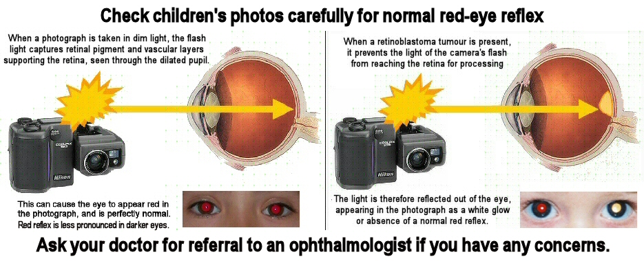 """A diagram shows the camera's flash light entering the eye, reflecting back red vascular layers of the retina in the healthy eye, or white from the surface of a tumour when cancer is present. Text above and below the diagram reads: """"check children's photos carefully for normal red reflex. Ask your doctor for referral to an ophthalmologist if you have any concerns""""."""