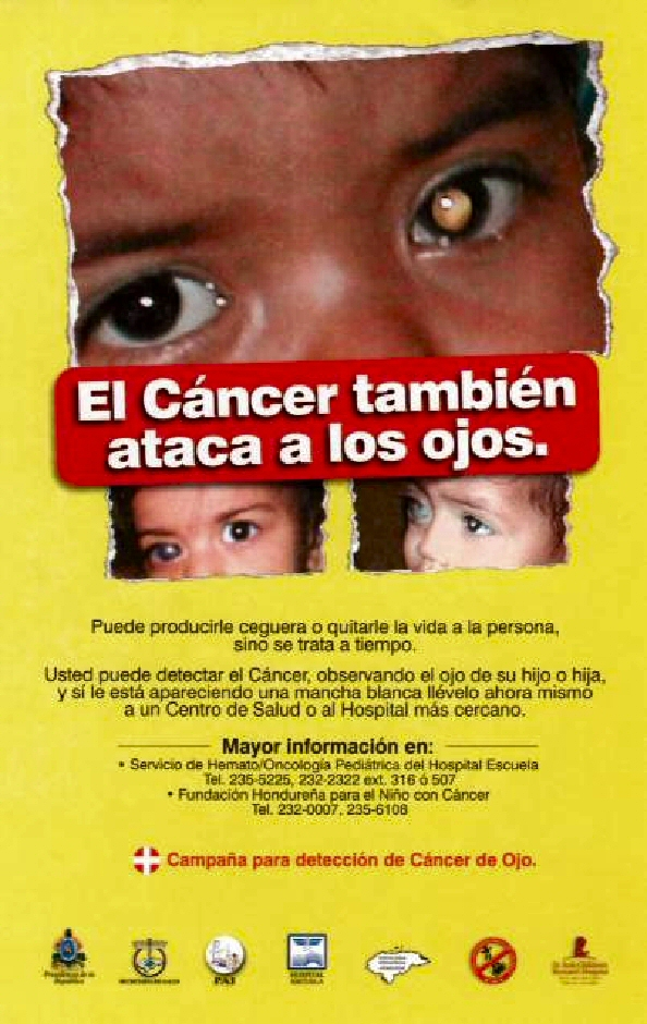 A retinoblastoma awareness poster used during the Honduras campaign.