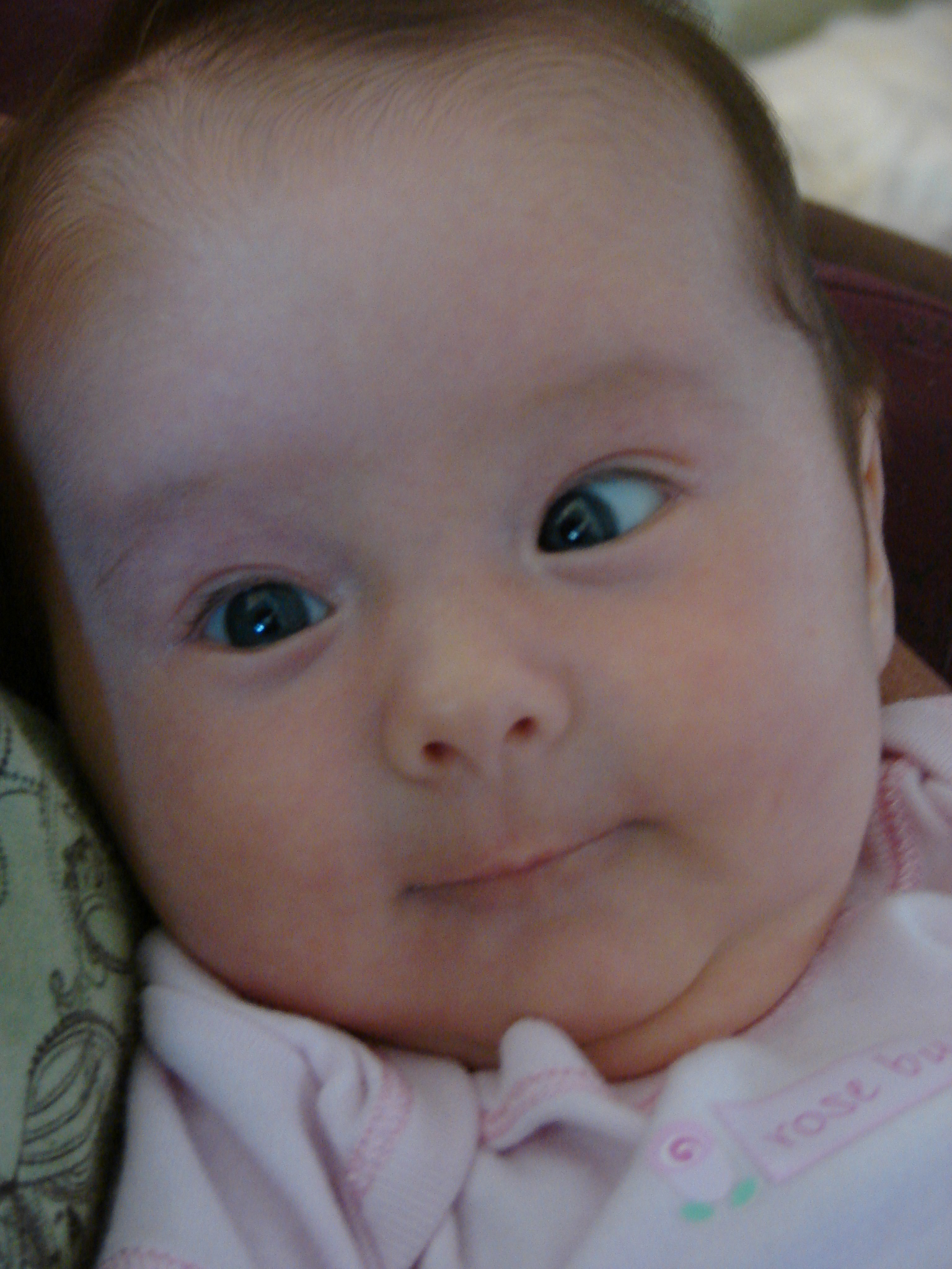 This baby's left eye turns in.