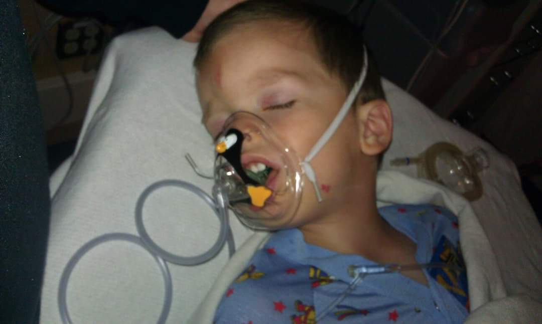 A young boy child in hospital gown lying on a bed with anesthesia mask on his face.